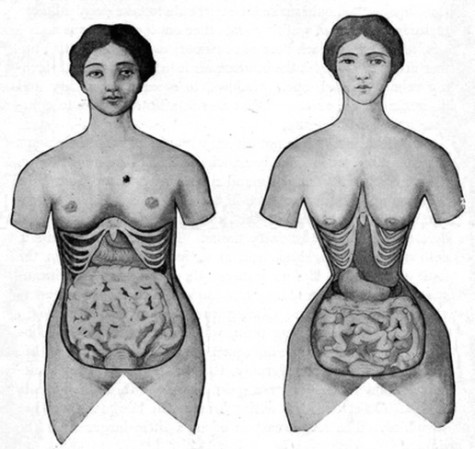 Waist training brings back a Victorian-era fad